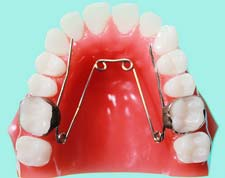 ADDC Oral Hygiene Cleaning of removable orthodontic applicances