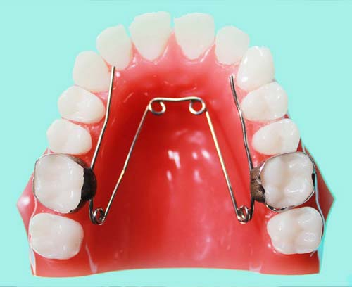 Cleaning removable orthodontic appliances