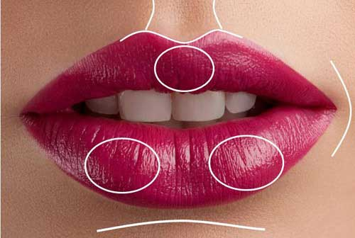 Facial Fillers Aftercare