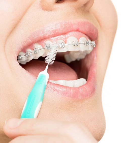 are interdental brushes good for braces