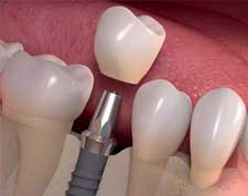Treatments-dental-implants-1