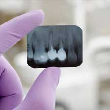 Treatments-dental-xrays-2-2