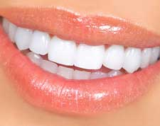 Treatments-veneers-small-1