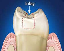 general-and-restorative-dentistry-inlays-and-onlays