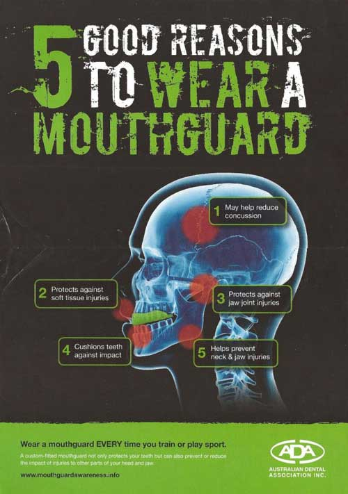mouthguards perth
