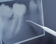 root canal treatment small