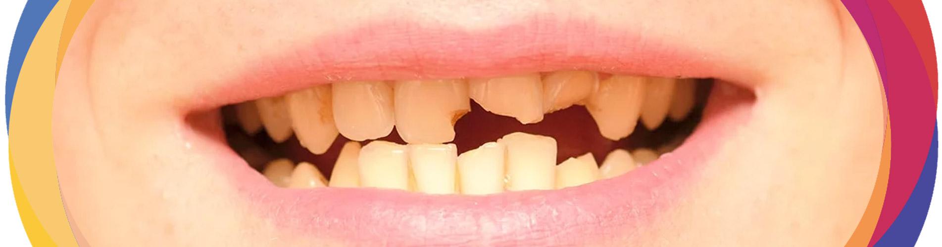 Broken Cracked Tooth